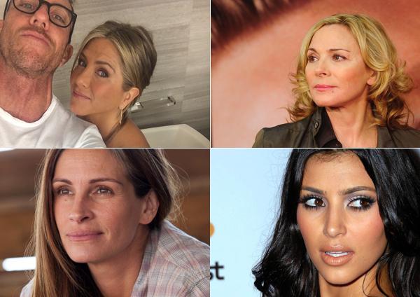 14 знаменитостей, которые использовали ботокс