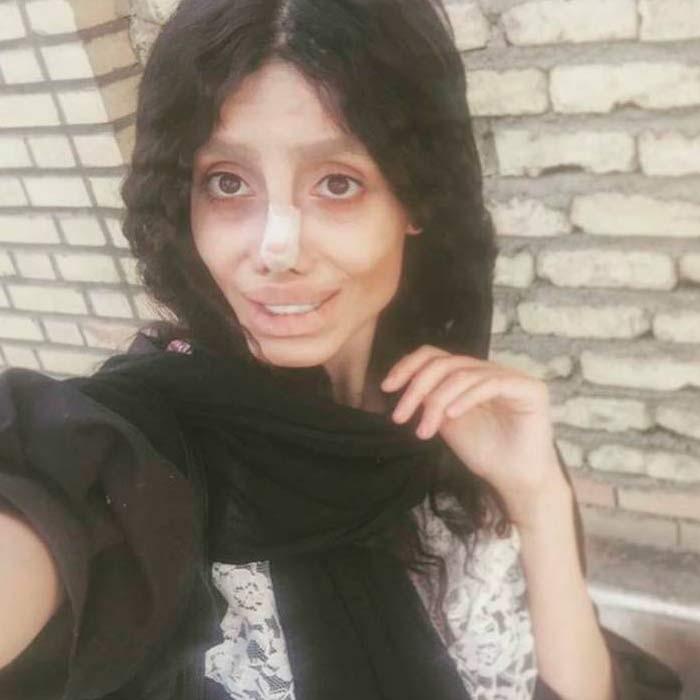 Сахар Табар сделала 50 пластических операций чтобы быть похожей на Анжелину Джоли